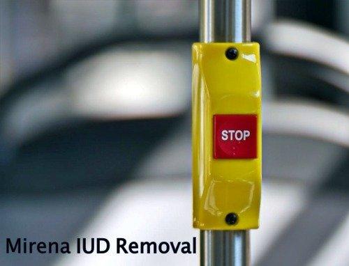 Mirena IUD Removal