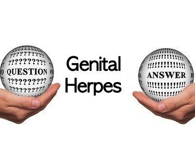 FAQs on Genital Herpes