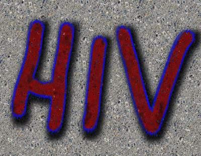 HIV-AIDSHIV-AIDS