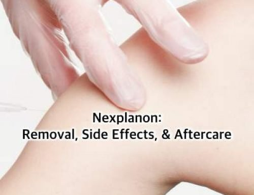 Nexplanon: Removal, Side Effects, & Aftercare