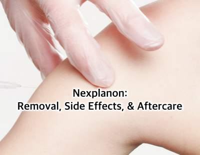 Nexplanon- Removal, Side Effects
