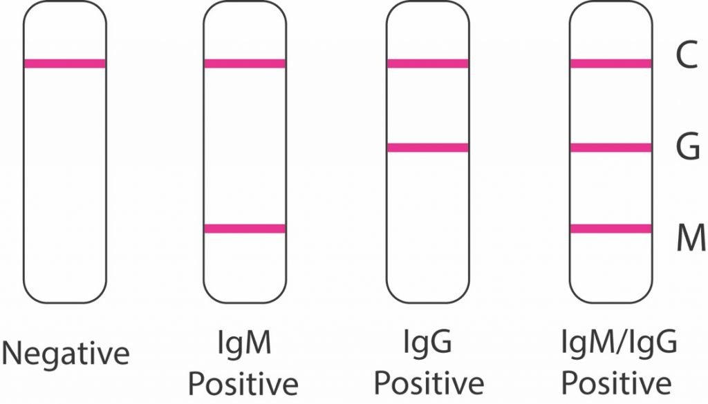 COVID-19 COVID-19 IgM/IgG Rapid Test Antibodies Test Result